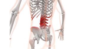 慢性腰痛、腰痛、腰痛改善